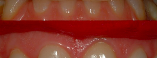 Faccette di ceramica dentali: procedure operative
