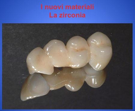 mauriziomacri_zirconia